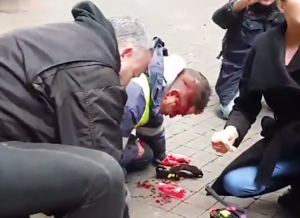 France: Police Shoot Yellow-Vest Protester in the Head from Behind – Riot Police Now Carry Loaded Automatic Weapons